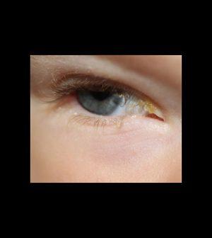 nyfödd kladdiga ögon